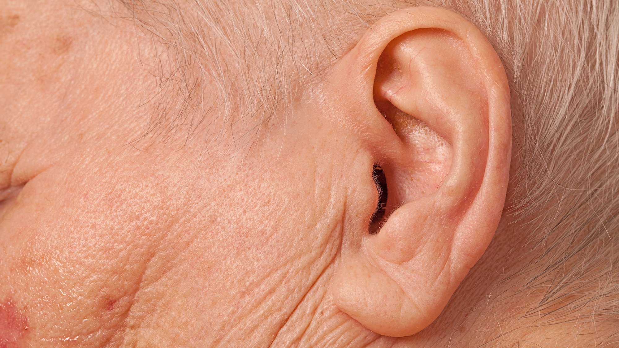 Gene therapy breakthrough for treatment of hearing loss