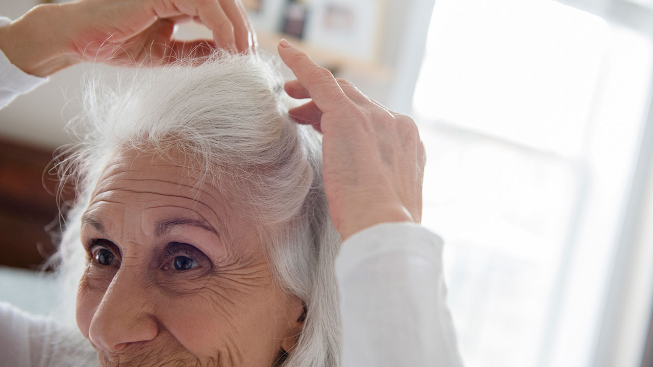 How to cope with female hair loss
