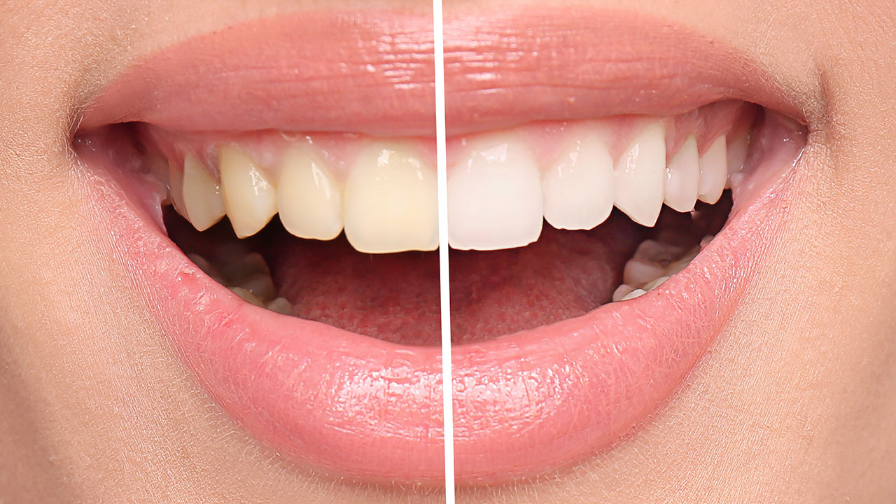 6 tips for healthy white teeth