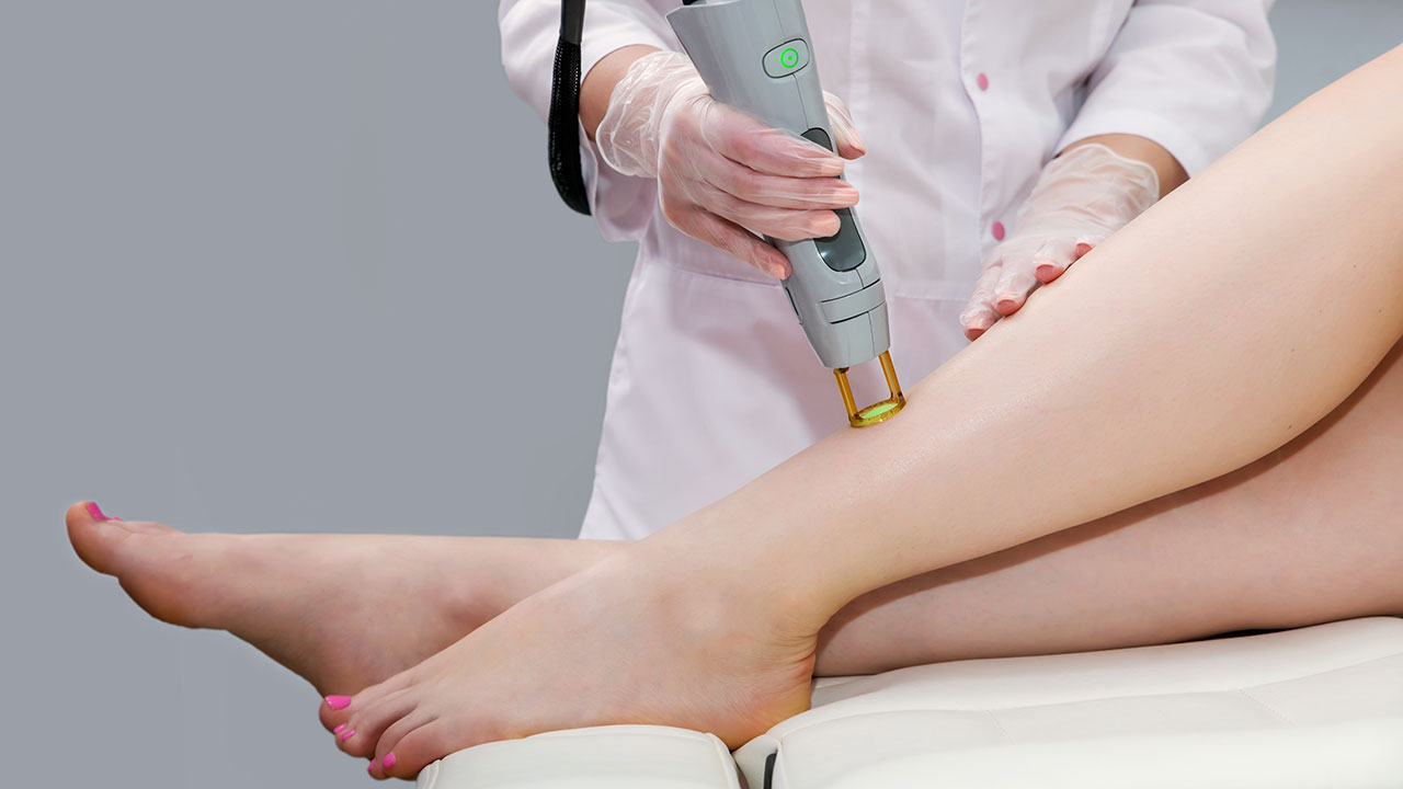 Laser hair removal: Here's everything you need to know