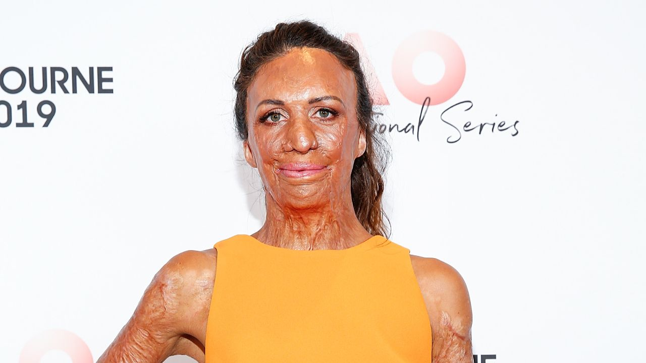 The intimate family pictures of Turia Pitt before the fire that almost took her life