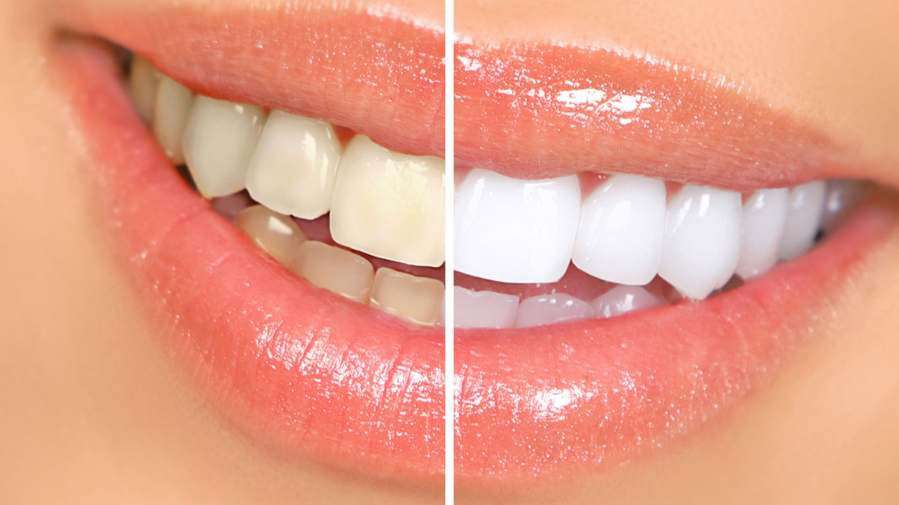 Ask the experts: Is teeth whitening bad for your teeth?