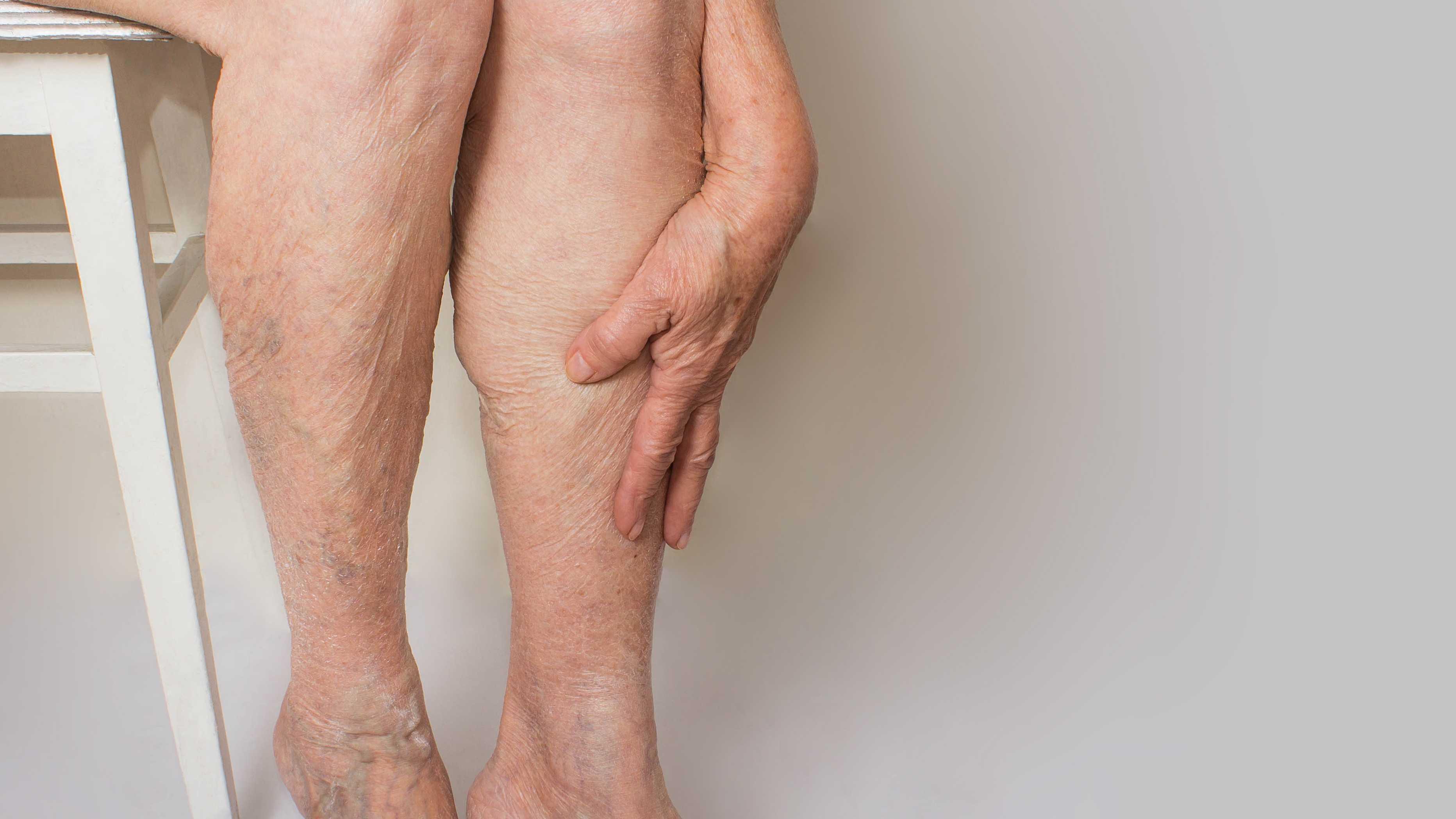 12 ways to rein in varicose vein pain