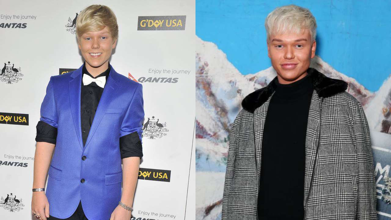 Jack Vidgen opens up about fillers, veneers and Botox after shocking viewers