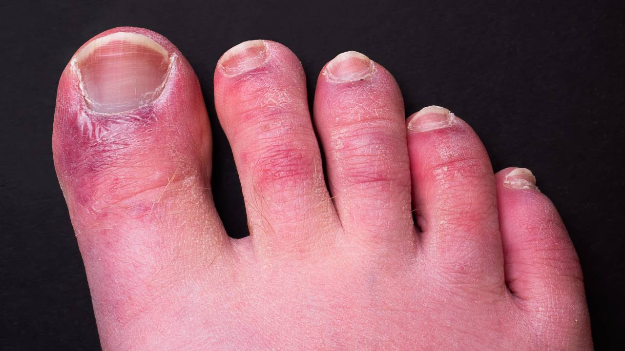 Check your feet! 'COVID toes' are a new and more rampant sign of coronavirus