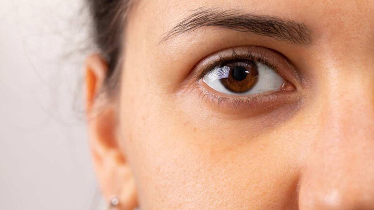 Dark eyes: May have a lower melanoma risk