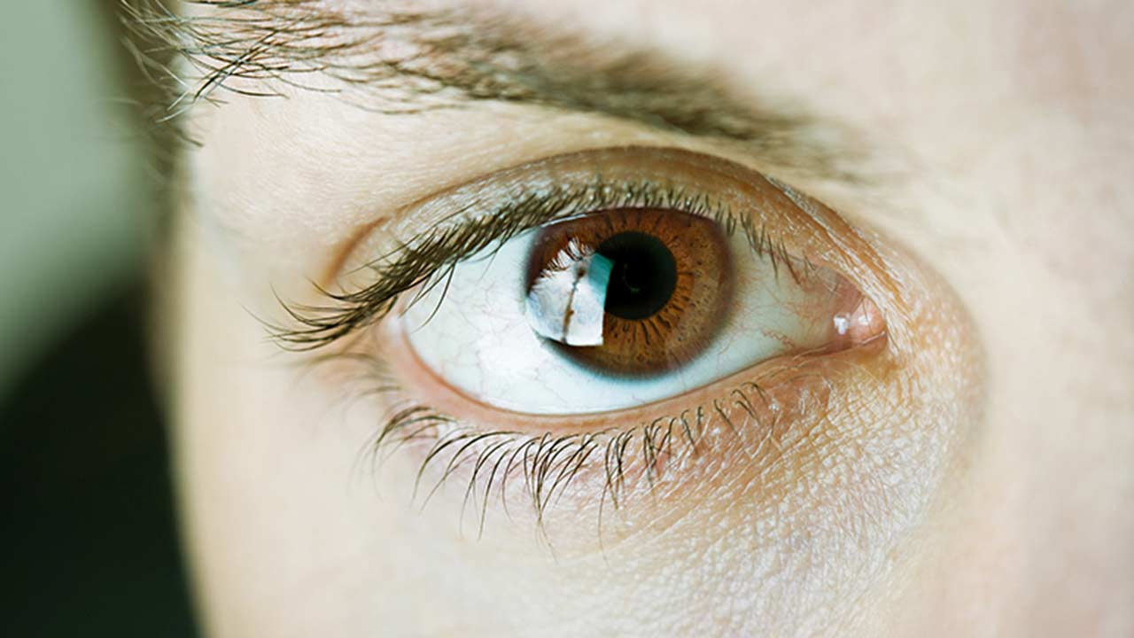 Dark eyes: May be less likely to have macular degeneration