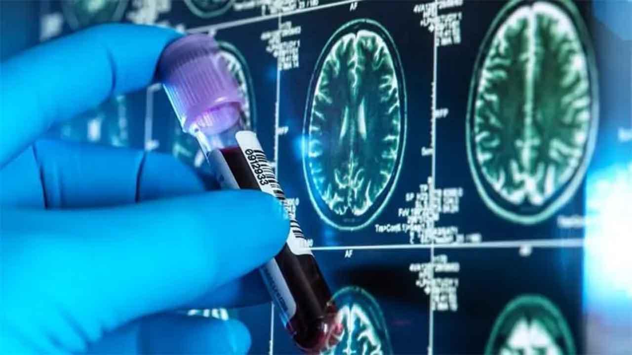 A better test for Alzheimer's disease